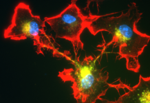 Microglia Form Networks That Engulf and Clear Pathogenic α-Synuclein