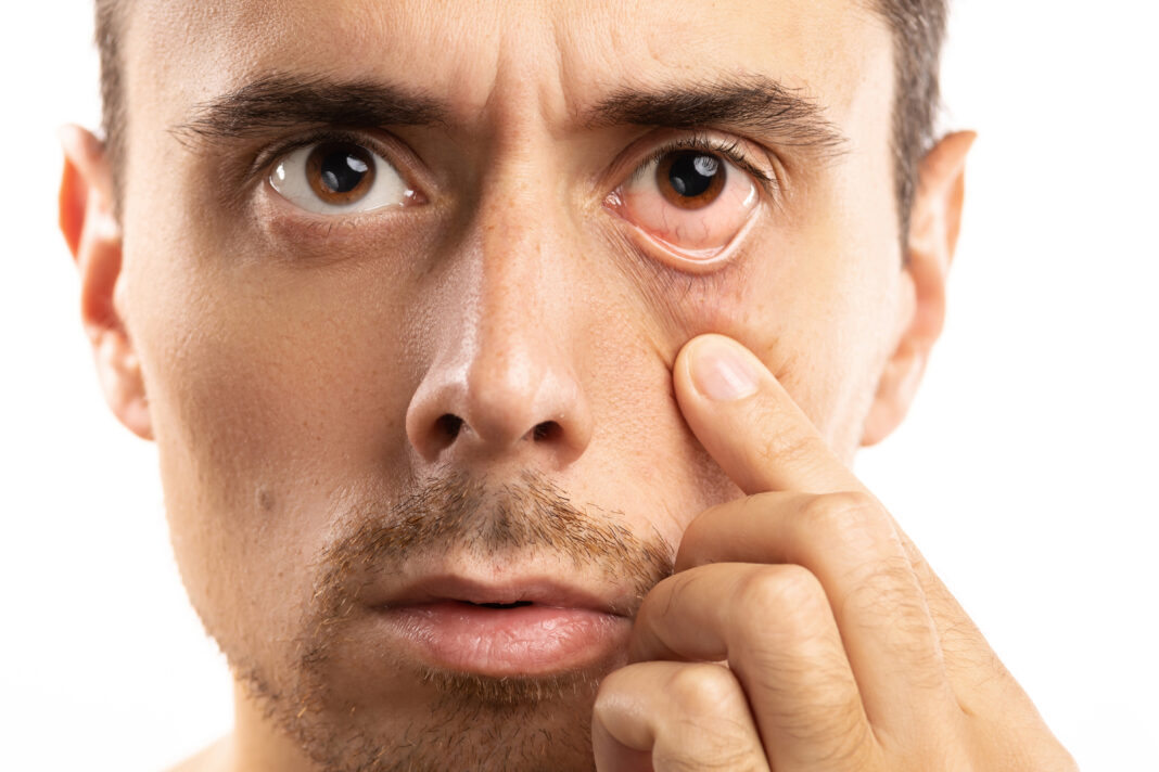 Man checking condition of his eye