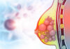 Invasive Breast Cancer Could Be Driven by Aged Tissue